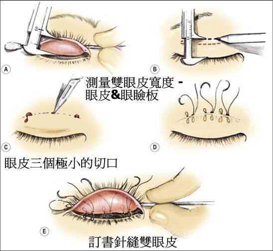 什么是缝双眼皮手术?
